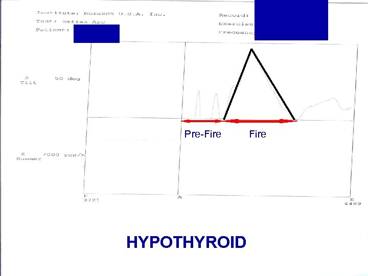 Pre-Fire HYPOTHYROID Fire