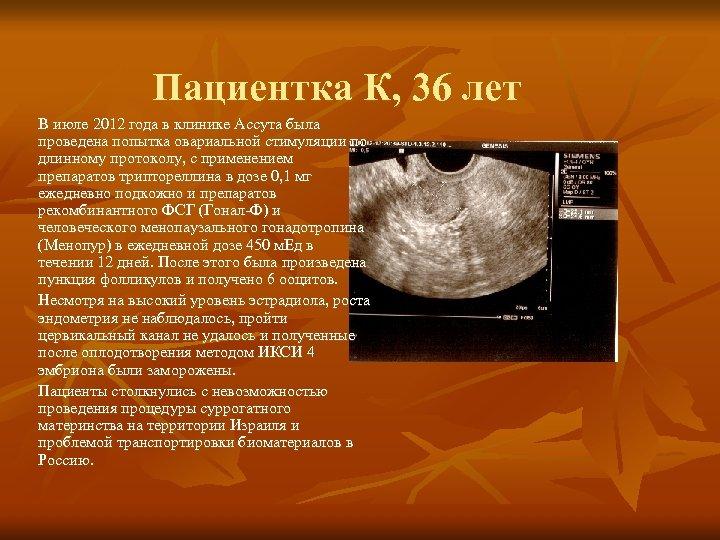 Пациентка К, 36 лет В июле 2012 года в клинике Ассута была проведена попытка
