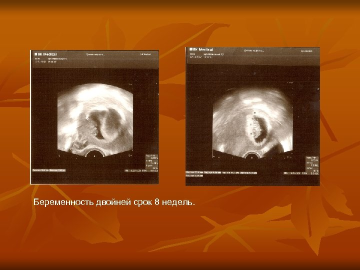 Беременность двойней срок 8 недель.