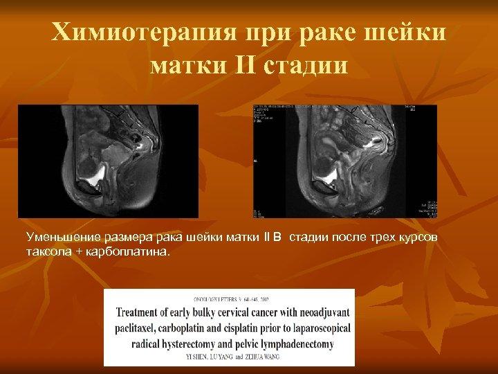 Химиотерапия при раке шейки матки II стадии Уменьшение размера рака шейки матки II B