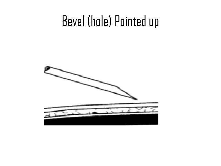 Bevel (hole) Pointed up