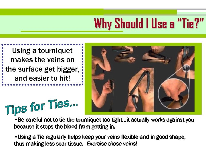 "Why Should I Use a ""Tie? "" Using a tourniquet makes the veins on"