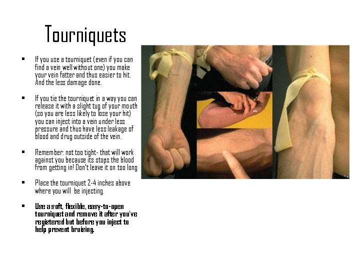 Tourniquets • If you use a tourniquet (even if you can find a vein