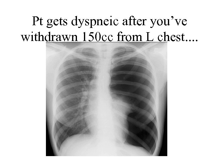 Pt gets dyspneic after you've withdrawn 150 cc from L chest. .