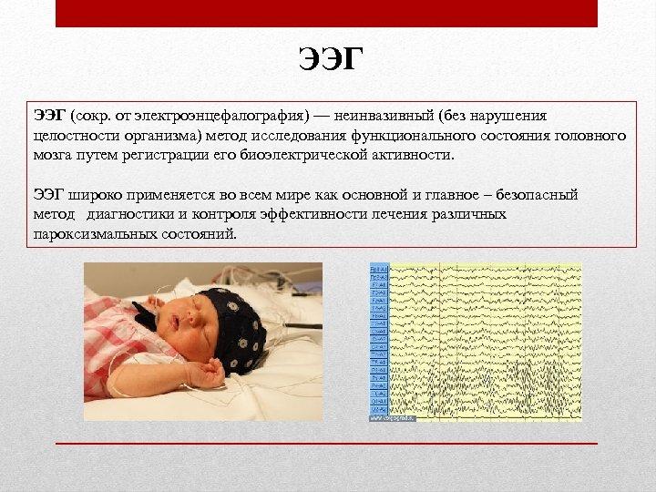 ЭЭГ (сокр. от электроэнцефалография) — неинвазивный (без нарушения целостности организма) метод исследования функционального состояния