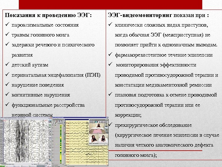 Показания к проведению ЭЭГ: ЭЭГ-видеомониторинг показан при : ü пароксизмальные состояния ü клинически сложных