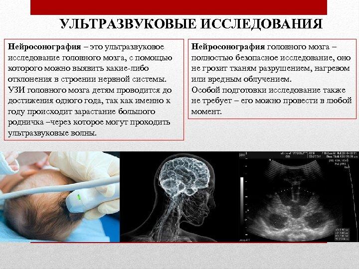 УЛЬТРАЗВУКОВЫЕ ИССЛЕДОВАНИЯ Нейросонография – это ультразвуковое исследование головного мозга, с помощью которого можно выявить