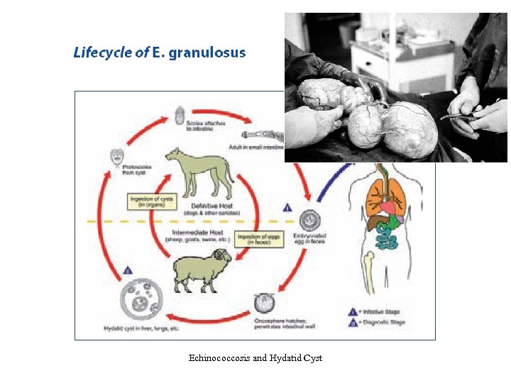Echinococcosis and Hydatid Cyst