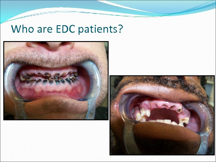 Who are EDC patients?