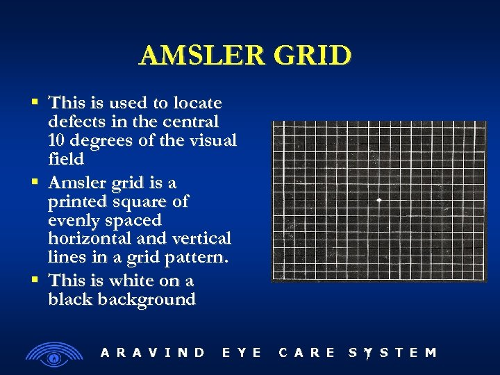 AMSLER GRID This is used to locate defects in the central 10 degrees of