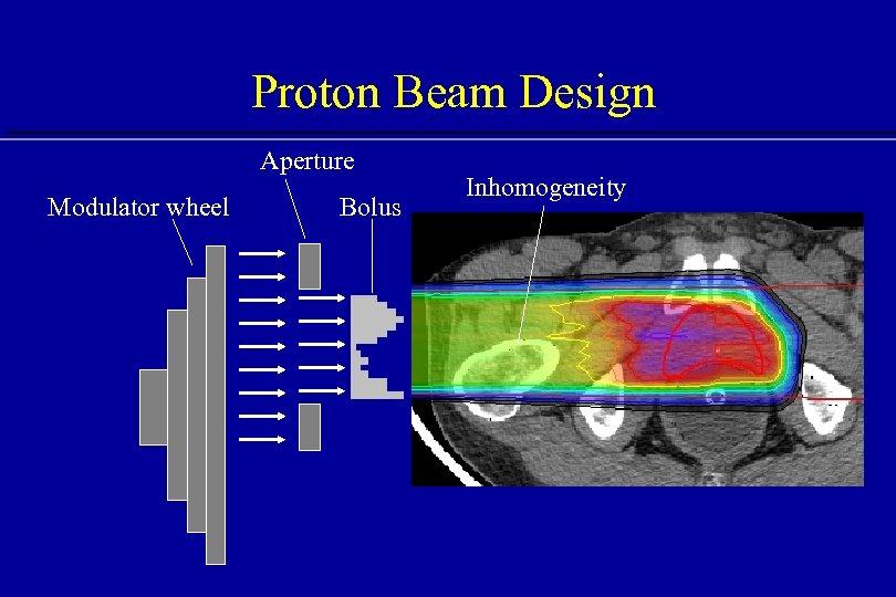 Proton Beam Design Aperture Modulator wheel Bolus Inhomogeneity