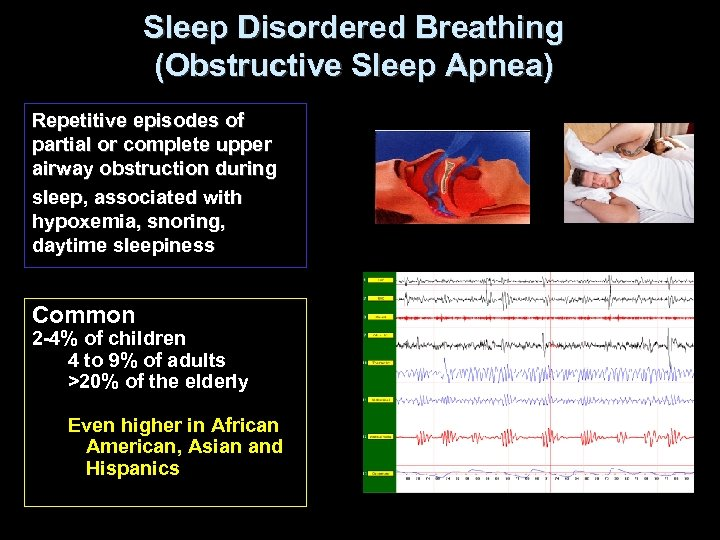 Sleep Disordered Breathing (Obstructive Sleep Apnea) Repetitive episodes of partial or complete upper airway