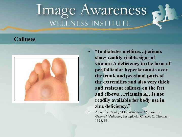 "Calluses • ""In diabetes mellitus…patients show readily visible signs of vitamin A deficiency in"