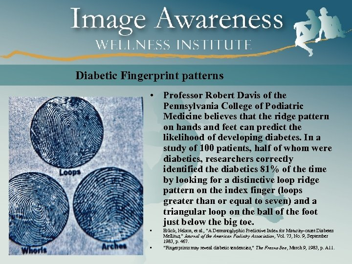 Diabetic Fingerprint patterns • Professor Robert Davis of the Pennsylvania College of Podiatric Medicine