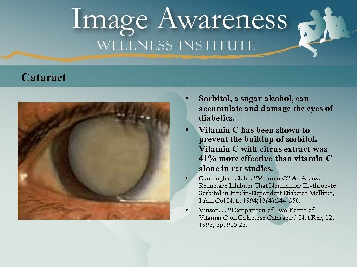 Cataract • • Sorbitol, a sugar alcohol, can accumulate and damage the eyes of