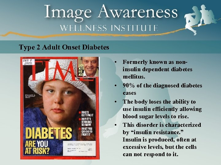 Type 2 Adult Onset Diabetes • Formerly known as noninsulin dependent diabetes mellitus. •
