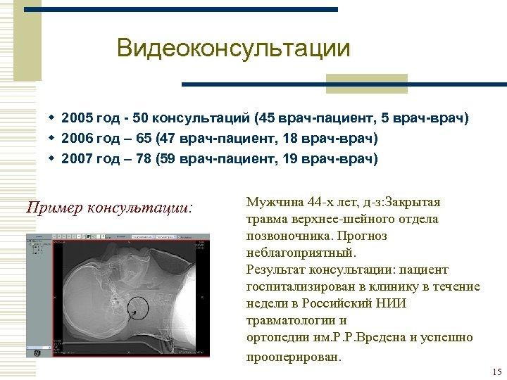 Видеоконсультации w 2005 год - 50 консультаций (45 врач-пациент, 5 врач-врач) w 2006 год