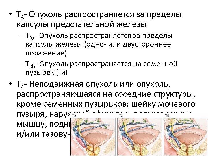 • Т 3 - Опухоль распространяется за пределы капсулы предстательной железы – Т