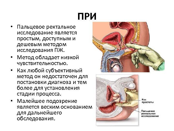 ПРИ • Пальцевое ректальное исследование является простым, доступным и дешевым методом исследования ПЖ. •