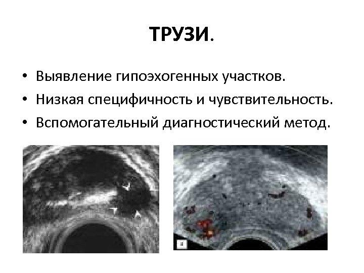 ТРУЗИ. • Выявление гипоэхогенных участков. • Низкая специфичность и чувствительность. • Вспомогательный диагностический метод.