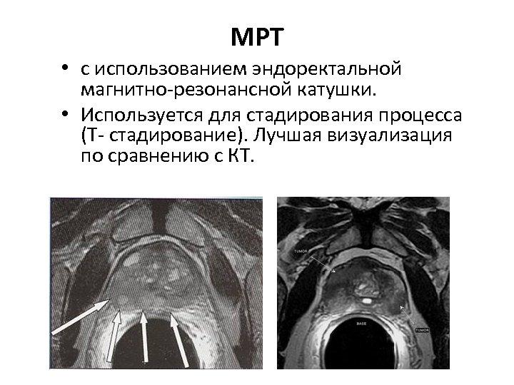 МРТ • с использованием эндоректальной магнитно-резонансной катушки. • Используется для стадирования процесса (Т- стадирование).