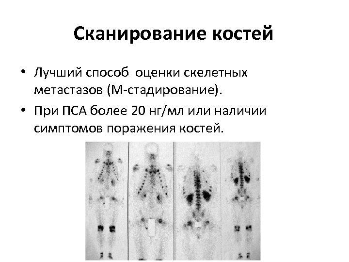 Сканирование костей • Лучший способ оценки скелетных метастазов (М-стадирование). • При ПСА более 20