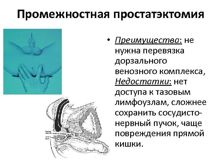 Промежностная простатэктомия • Преимущества: не нужна перевязка дорзального венозного комплекса, Недостатки: нет доступа к