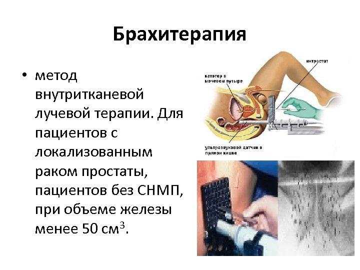 Брахитерапия • метод внутритканевой лучевой терапии. Для пациентов с локализованным раком простаты, пациентов без