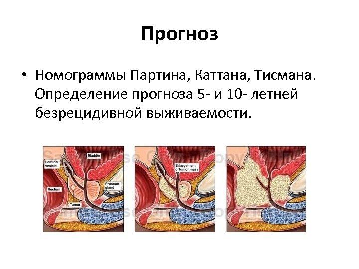 Прогноз • Номограммы Партина, Каттана, Тисмана. Определение прогноза 5 - и 10 - летней