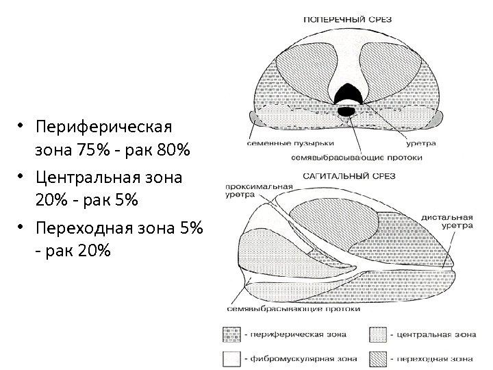 • Периферическая зона 75% - рак 80% • Центральная зона 20% - рак