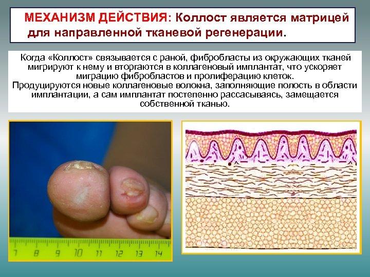 МЕХАНИЗМ ДЕЙСТВИЯ: Коллост является матрицей для направленной тканевой регенерации. Когда «Коллост» связывается с