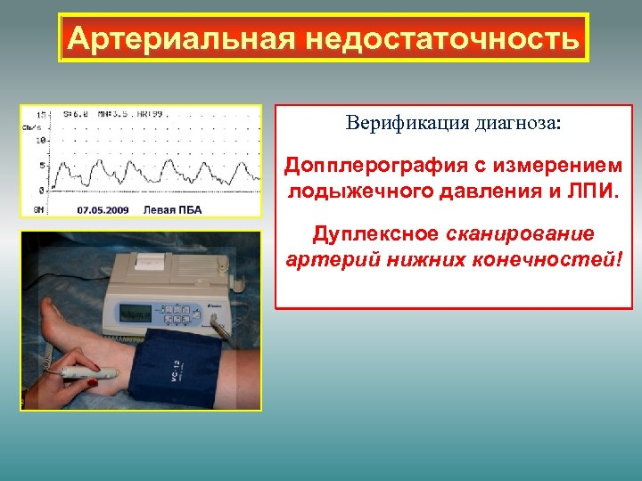 Артериальная недостаточность Верификация диагноза: Допплерография с измерением лодыжечного давления и ЛПИ. Дуплексное сканирование артерий