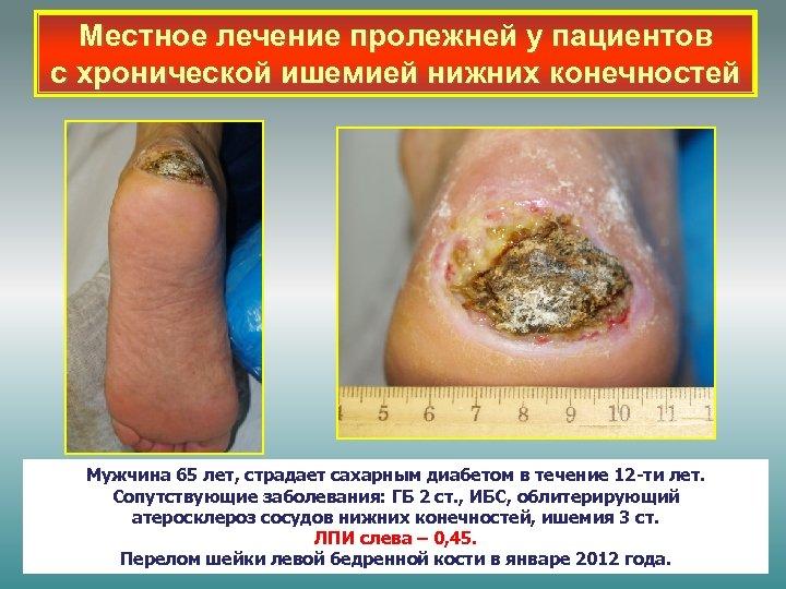 Местное лечение пролежней у пациентов с хронической ишемией нижних конечностей Мужчина 65 лет, страдает