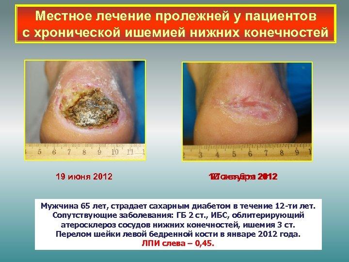 Местное лечение пролежней у пациентов с хронической ишемией нижних конечностей 19 июня 2012 12
