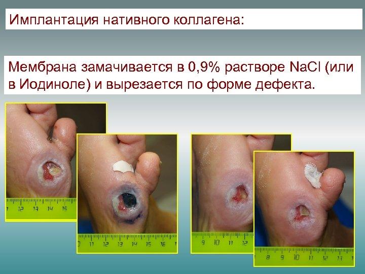 Имплантация нативного коллагена: Мембрана замачивается в 0, 9% растворе Na. Cl (или в Иодиноле)
