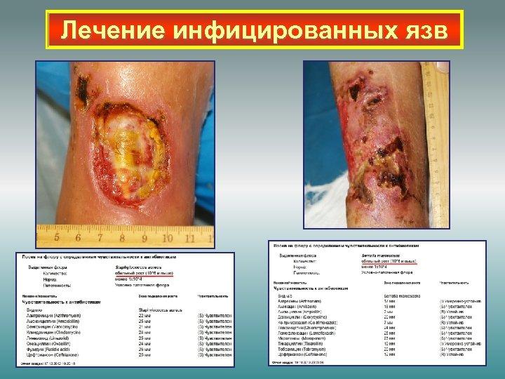 Лечение инфицированных язв