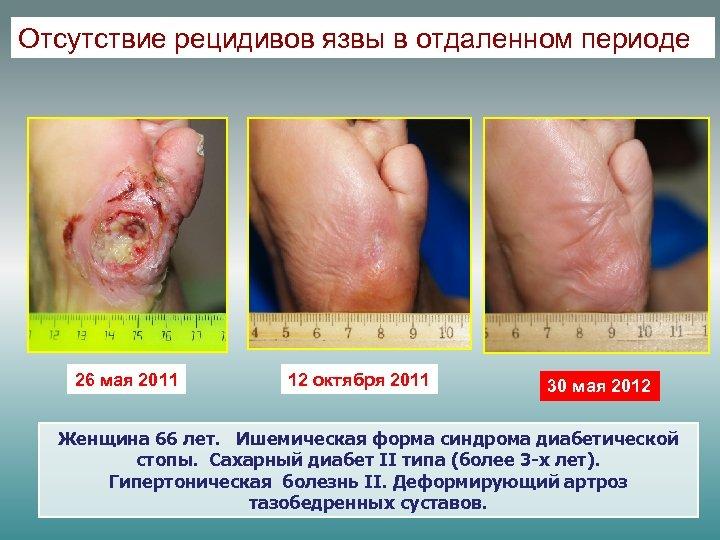 Отсутствие рецидивов язвы в отдаленном периоде 26 мая 2011 12 октября 2011 30 мая