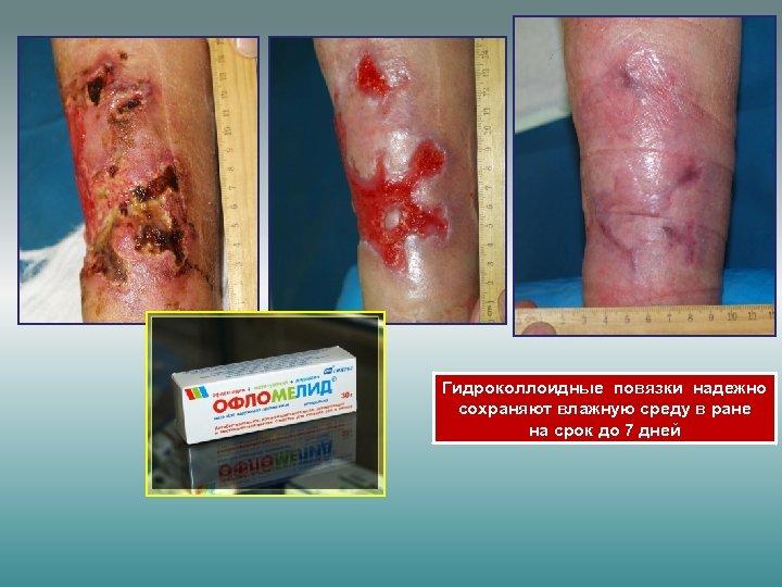Гидроколлоидные повязки надежно сохраняют влажную среду в ране на срок до 7 дней