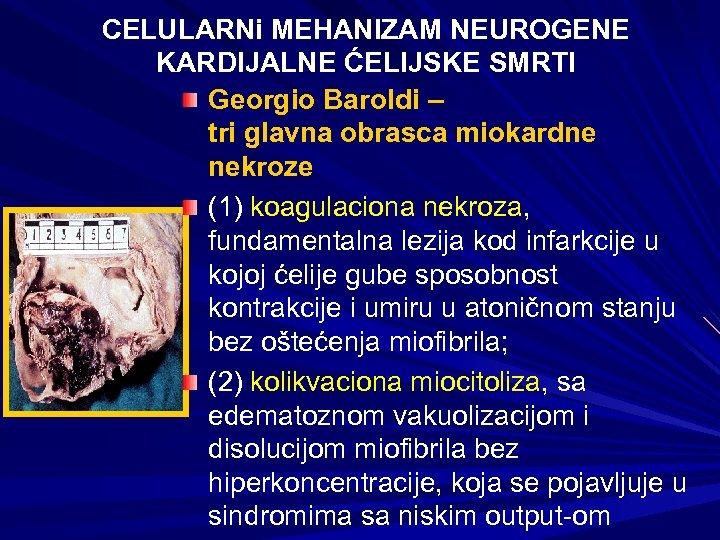CELULARNi MEHANIZAM NEUROGENE KARDIJALNE ĆELIJSKE SMRTI Georgio Baroldi – tri glavna obrasca miokardne nekroze