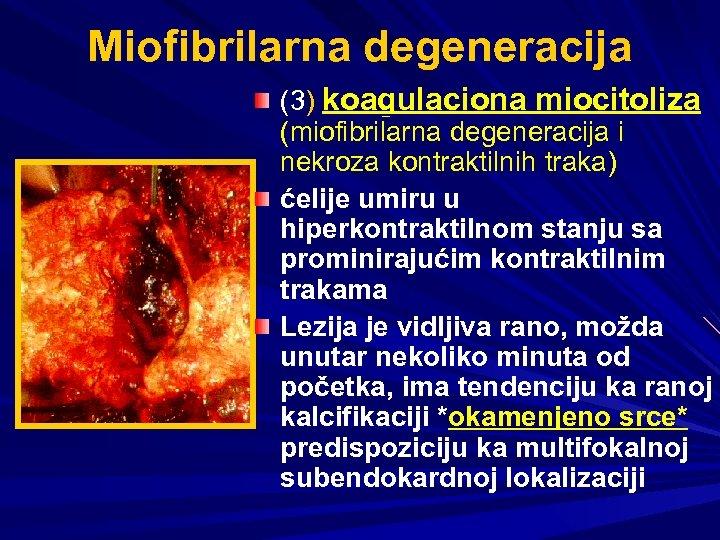Miofibrilarna degeneracija (3) koagulaciona miocitoliza (miofibrilarna degeneracija i nekroza kontraktilnih traka) ćelije umiru u