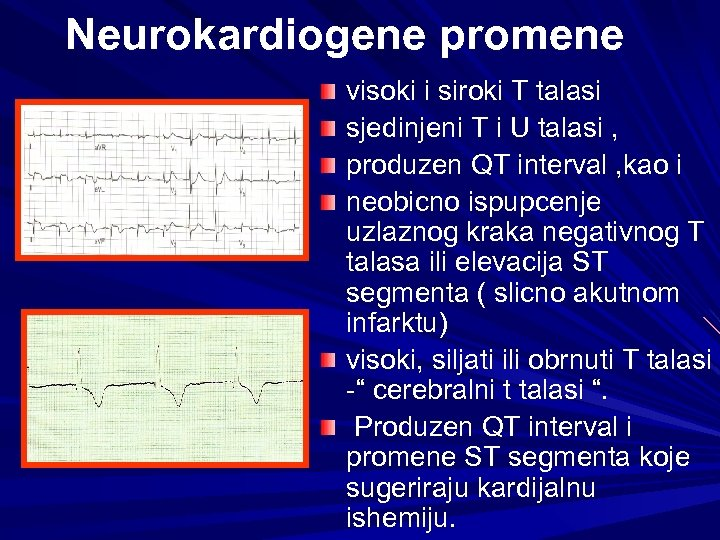 Neurokardiogene promene visoki i siroki T talasi sjedinjeni T i U talasi , produzen
