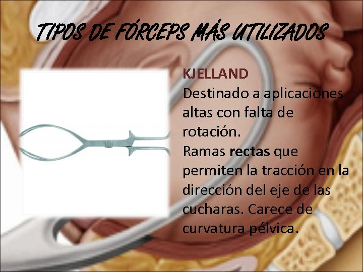 TIPOS DE FÓRCEPS MÁS UTILIZADOS KJELLAND Destinado a aplicaciones altas con falta de rotación.