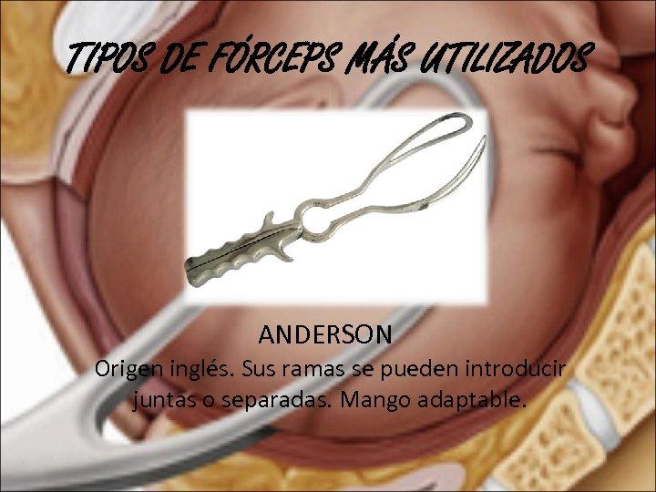 TIPOS DE FÓRCEPS MÁS UTILIZADOS ANDERSON Origen inglés. Sus ramas se pueden introducir juntas