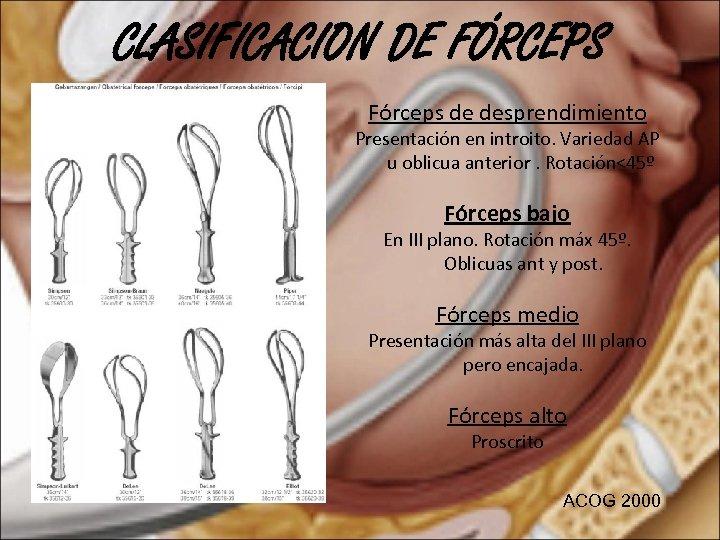 CLASIFICACION DE FÓRCEPS Fórceps de desprendimiento Presentación en introito. Variedad AP u oblicua anterior.