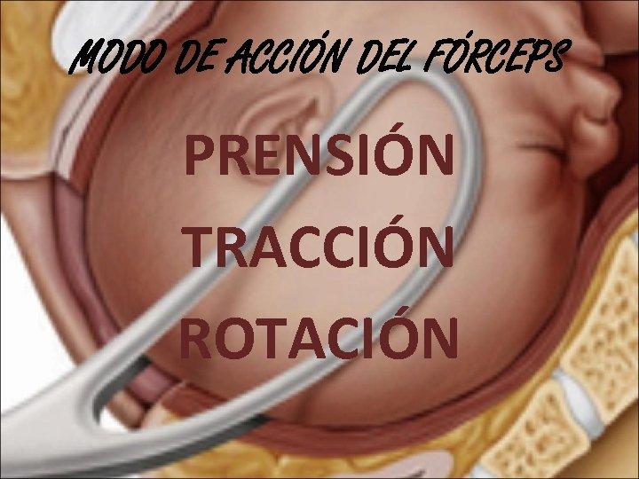 MODO DE ACCIÓN DEL FÓRCEPS PRENSIÓN TRACCIÓN ROTACIÓN