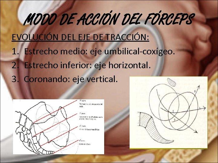 MODO DE ACCIÓN DEL FÓRCEPS EVOLUCIÓN DEL EJE DE TRACCIÓN: 1. Estrecho medio: eje