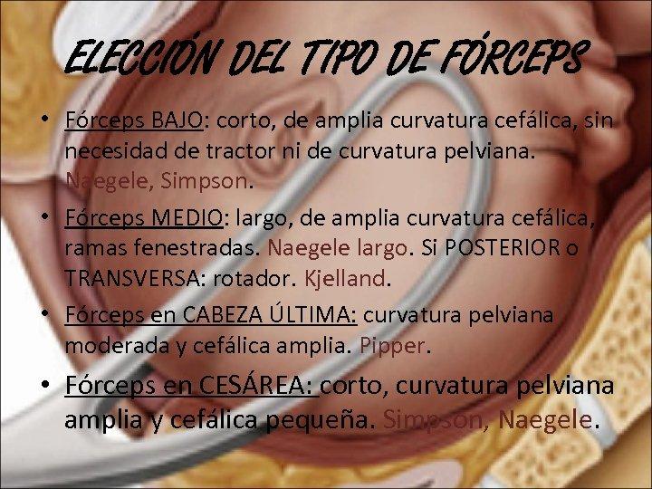 ELECCIÓN DEL TIPO DE FÓRCEPS • Fórceps BAJO: corto, de amplia curvatura cefálica, sin