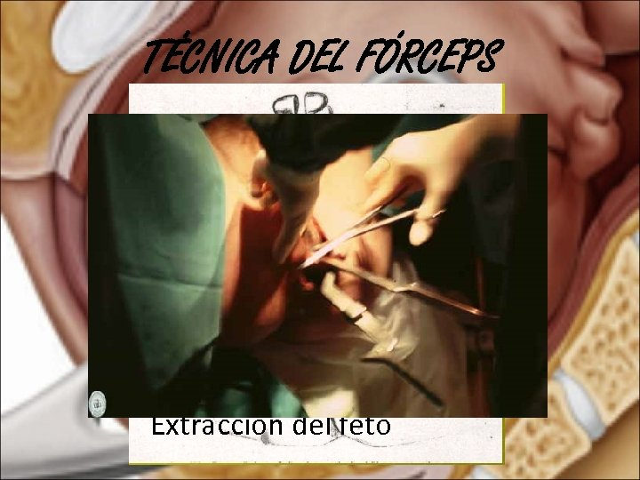 TÉCNICA DEL FÓRCEPS Extracción del feto