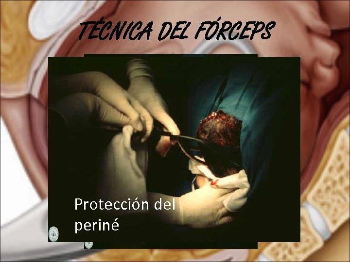 TÉCNICA DEL FÓRCEPS Protección del periné