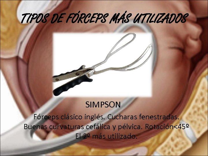 TIPOS DE FÓRCEPS MÁS UTILIZADOS SIMPSON Fórceps clásico inglés. Cucharas fenestradas. Buenas curvaturas cefálica